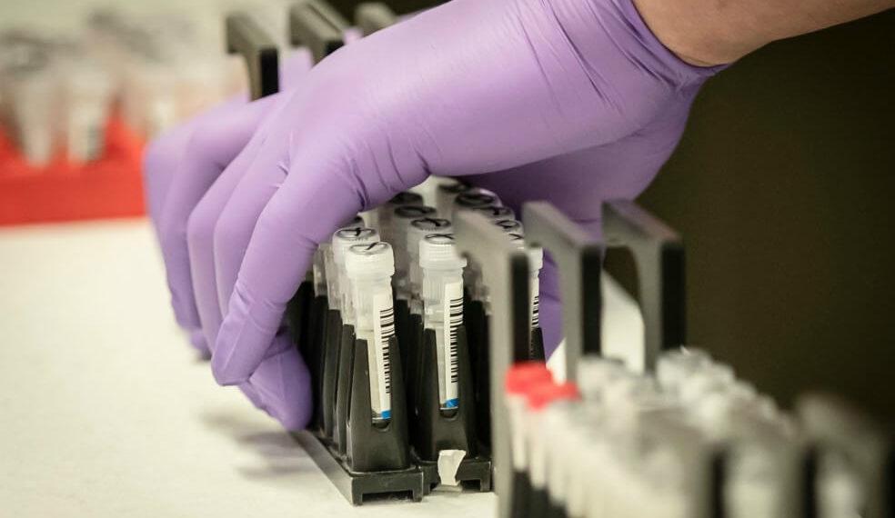 Aumentan casos de coronavirus en Cartagena de Indias.